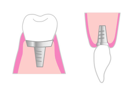 Implants of front and back teeth