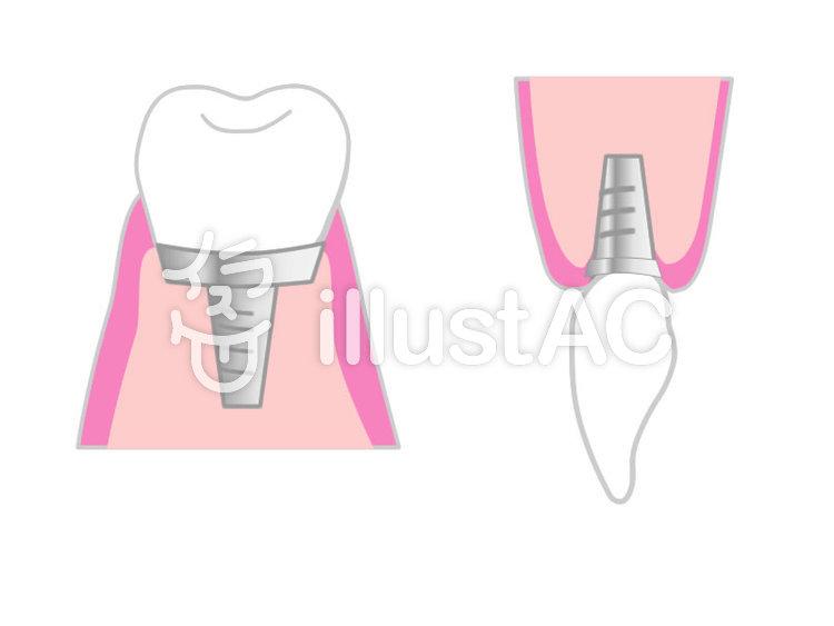 前歯と奥歯のインプラントイラスト No 738259無料イラストなら