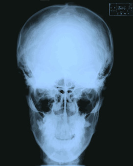 X-ray image (X-ray picture)