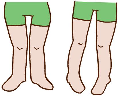 足,下肢,O脚,X脚,整体,歪み