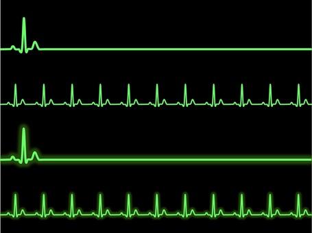 ECG green