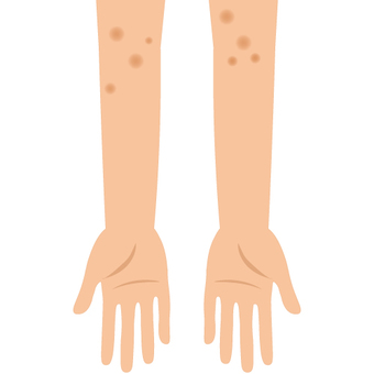 Arms (arms with scars)