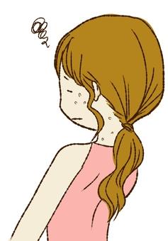 Women suffering from warts