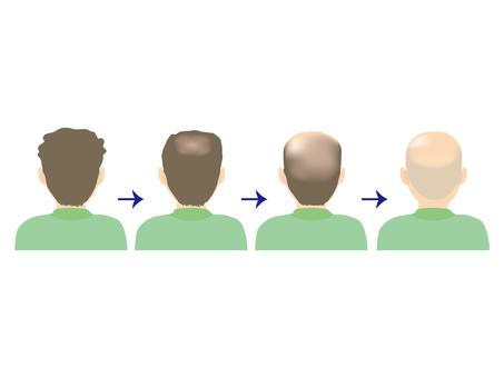 Male · thin hair & hair loss B