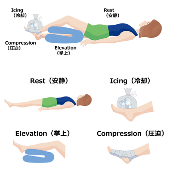 First-aid measures of sports trauma RICE treatment
