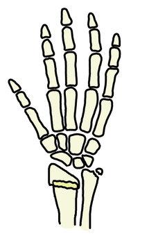 Hand bone fracture 758 x 1200