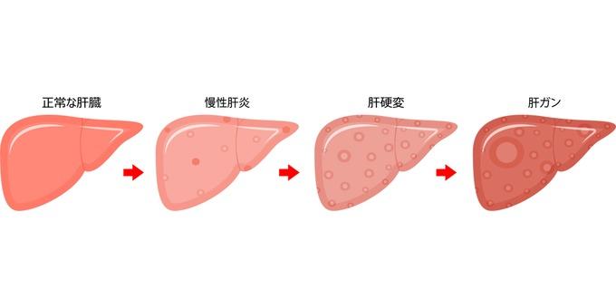 Progression diagram of liver disease