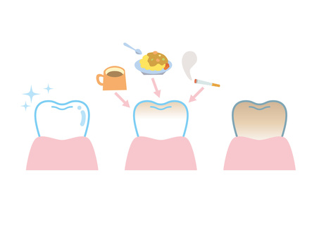 Tooth coloring