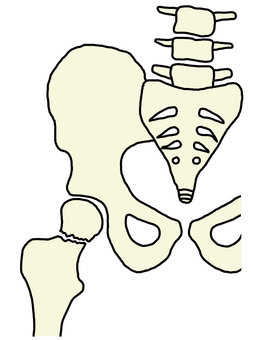 Fracture of thigh neck 820x110