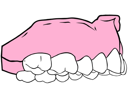 Tooth-Max jaw only side (right side)