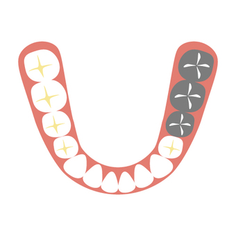 Dentist (bridge)