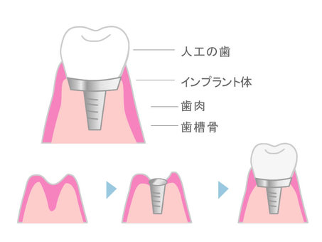 Implant treatment (artificial tooth)