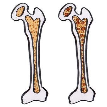 Healthy bones and skusca bones