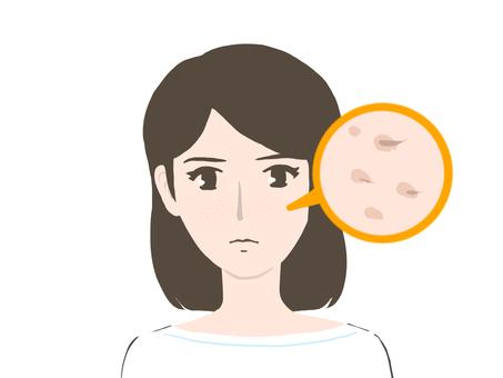 Female pore
