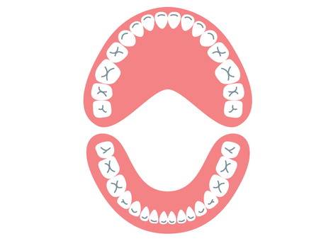 Tooth alignment (permanent teeth) from above