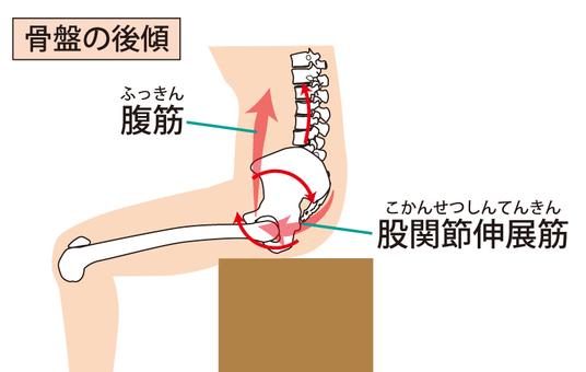 Posterior tilt of the pelvis