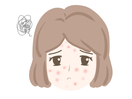 Female acne face