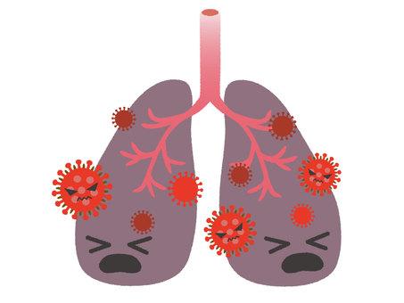 폐렴의 이미지 2