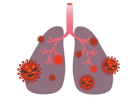폐렴의 이미지 3