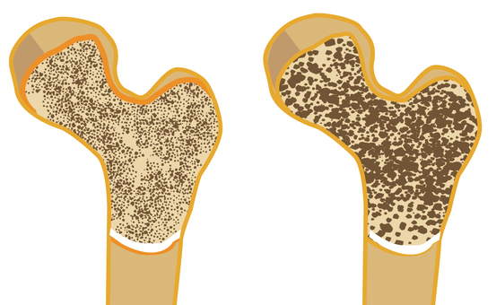 Cross-sectional view of bone