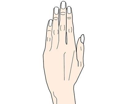 의료용 손등의 그림