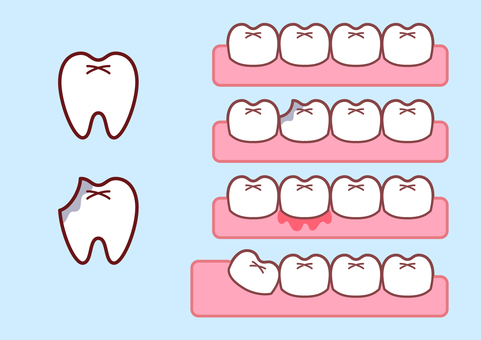 Tooth illustration set