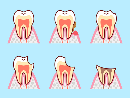 Illustration set of tooth cross section