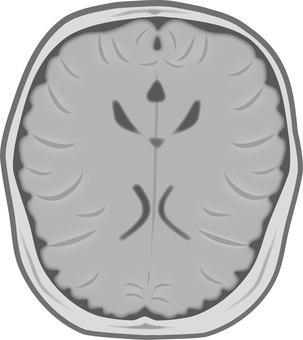 Brain MRI image
