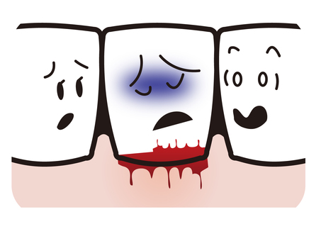 Bleeding from gums