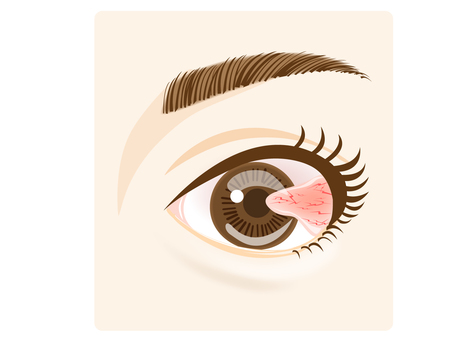Illustration of the eye (winged piece)