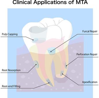 牙科保健MTA