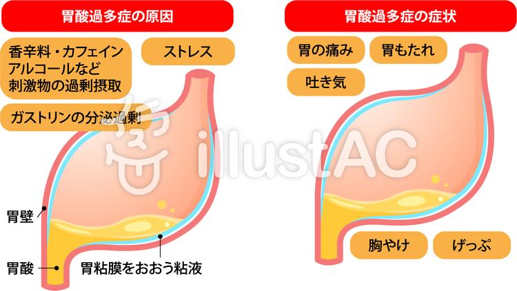 胃酸の逆流イラスト - No: 34439...