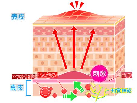 Hives mechanism
