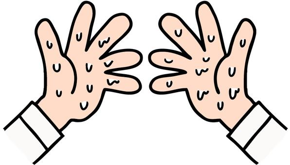 Illustration of hand sweat