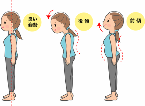 Women who stand in good posture and women who stand in bad posture