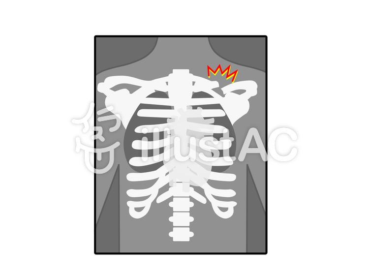 鎖骨骨折のレントゲン写真イラスト No 1402870無料イラストなら