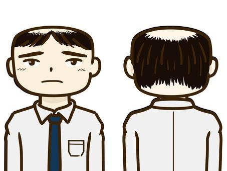 Thin hair 03