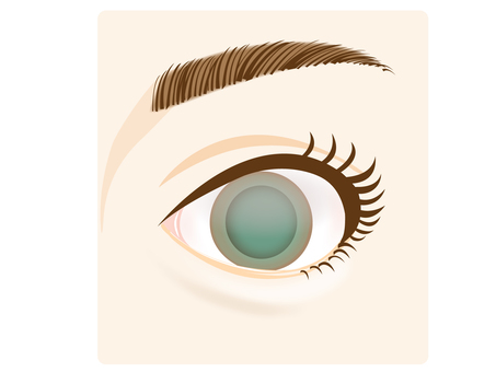 Illustration of eyes (glaucoma)