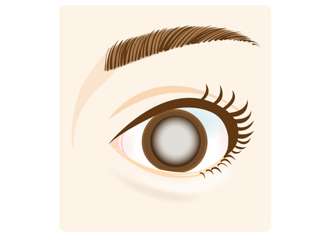 Illustration of eyes (cataract)
