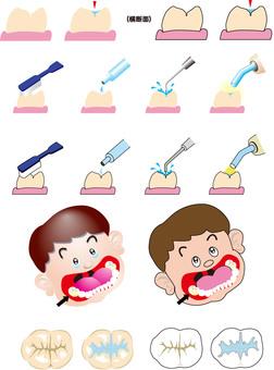 牙科治療密封膠