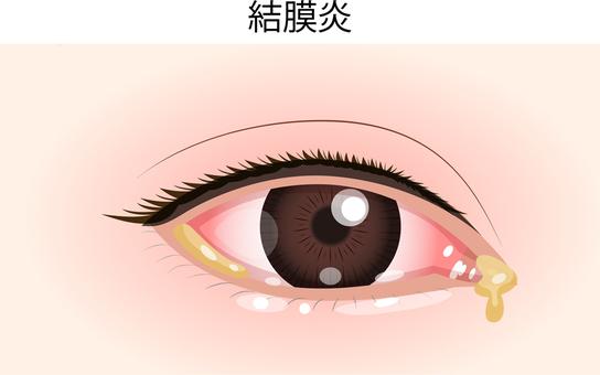 눈의 질병