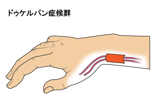 두케루반 증후군의 그림