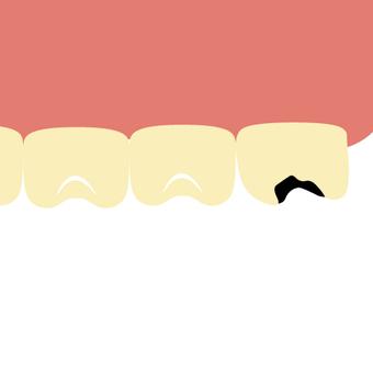 Tooth decay (wisdom teeth, back teeth)