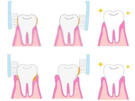 Periodontal disease prevention and tooth brushing