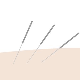Acupuncture 21