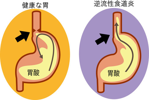 Stomach of reflux esophagitis ⑨