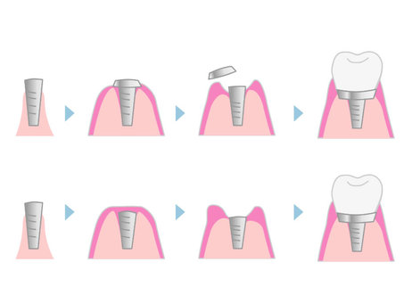 Implant treatment process