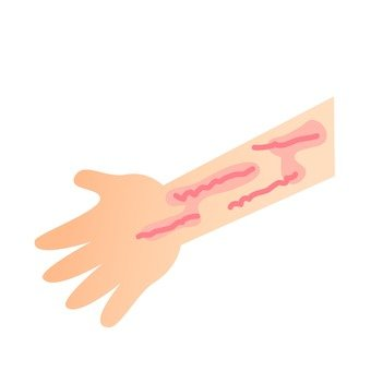 Hand urticaria