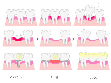 Periodontal disease treatment implants, dentures, bridges