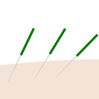 Acupuncture 22